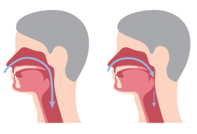 Animation of open and obstructed airways
