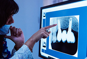 Dentist looking at digital x-rays