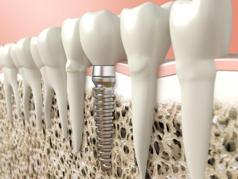 A diagram of a dental implant.